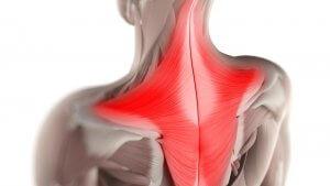 عضله ذوزنقه یا تراپزیوس Trapezius