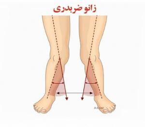پای ضربدری