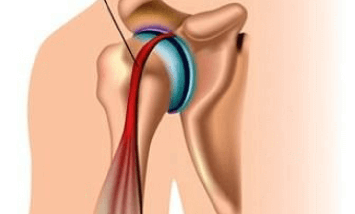 علت درد شانه در ورزشکاران